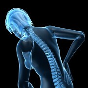 Spinal Fracture related image